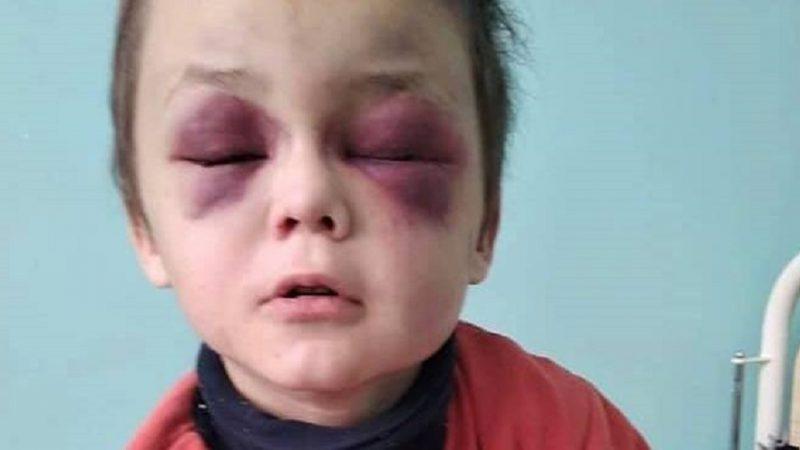 Катувала хлопчика: на Вінниччині  мачуха проведе 2 роки у в'язниці за знущання над дитиною