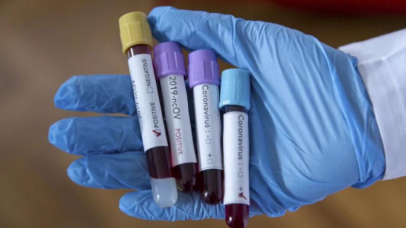 Більш ніж 800 вінничан одужали від коронавірусу